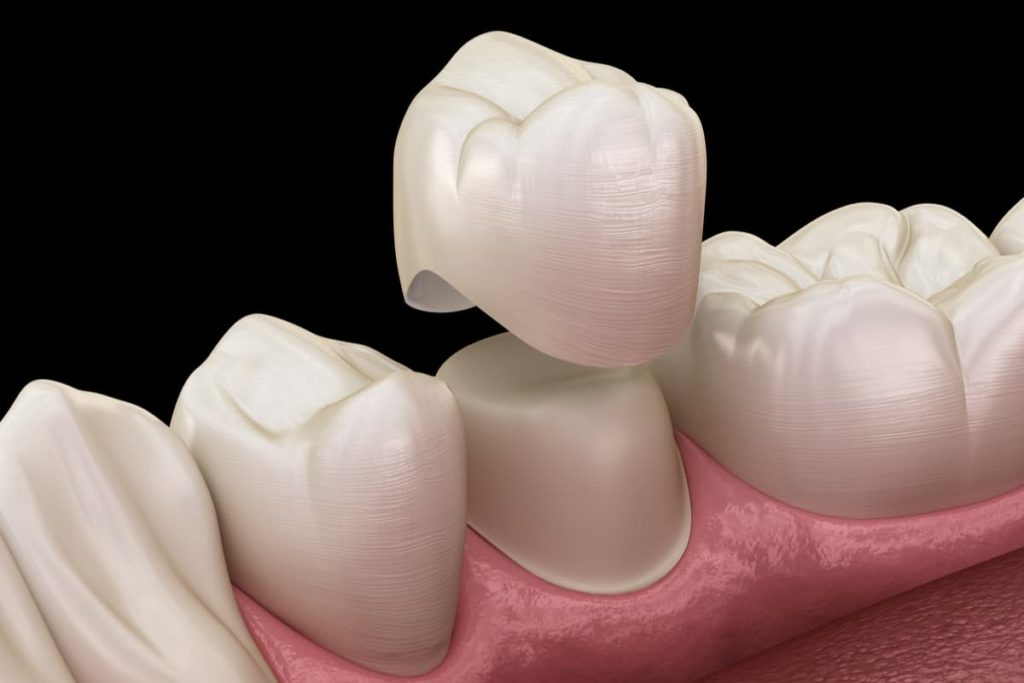 Dental Crowns & Bridges from Guttry Dental in Longview, TX