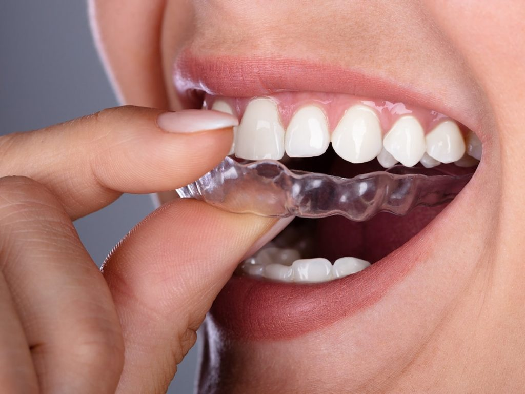 Invisalign Orthodontics - Longview TX - Robert B. Guttry DDS - Guttry Dental