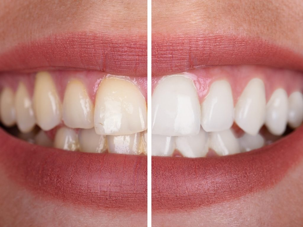 Teeth Whitening - Longview TX - Robert B. Guttry DDS - Guttry Dental